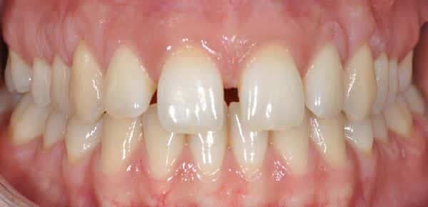 שיניים לפני
