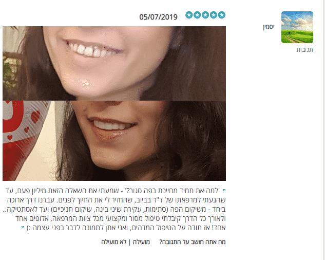 """יסמין חזרה לחייך אחרי סדרת טיפולים לשיקום הפה אצל ד""""ר בביוב"""