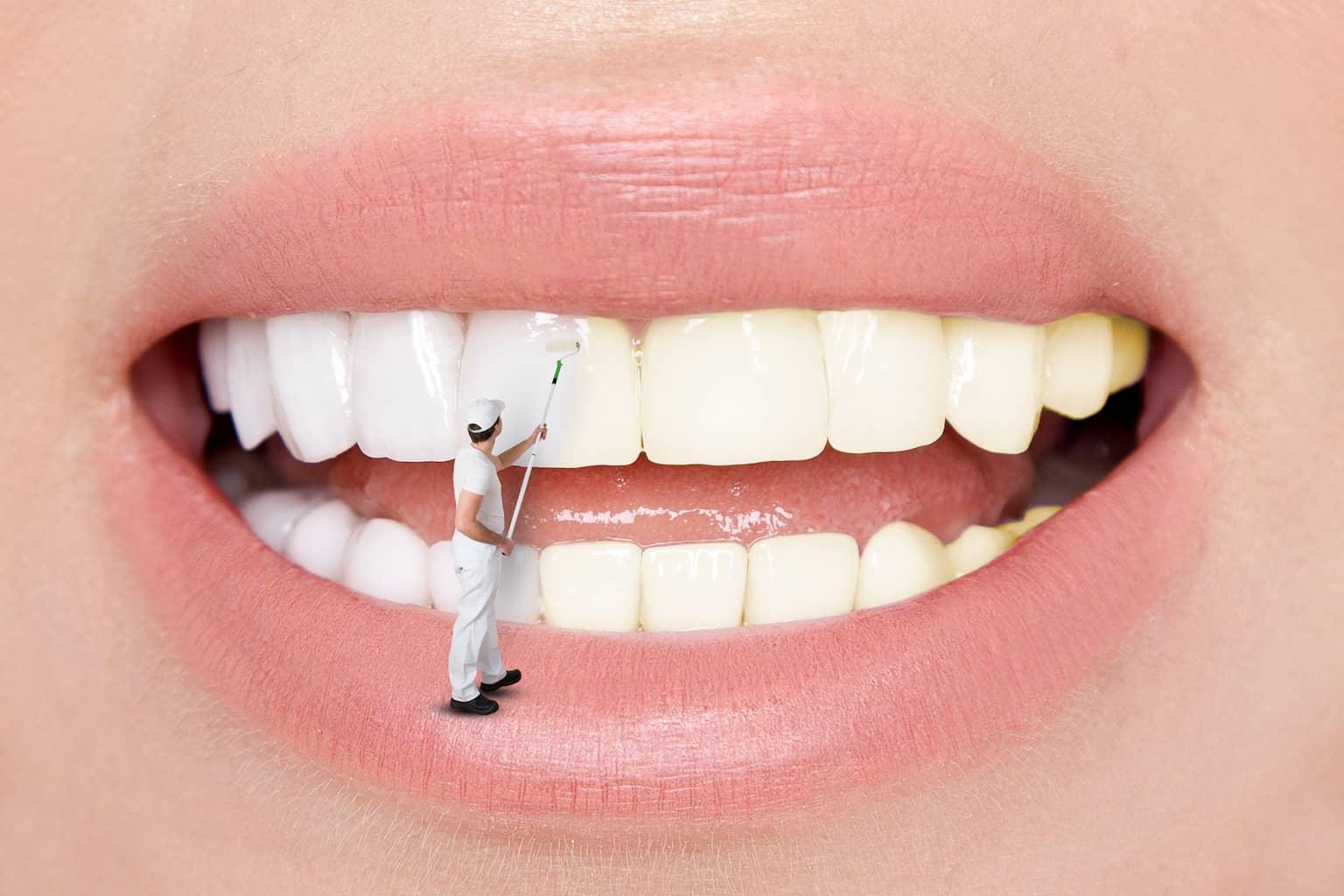 ציפוי ננו-קרמי לשיניים: מה זה אומר ולמי זה מתאים?